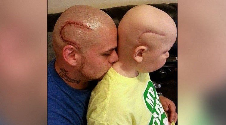 June 2015 - Josh Marshall gets a tattoo on his head to match his son's surgery scar.