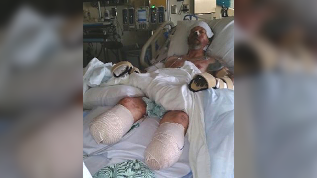 Greg Manteufel lost his limbs after a dog lick lead to a rare blood infection. (WITI via CNN)