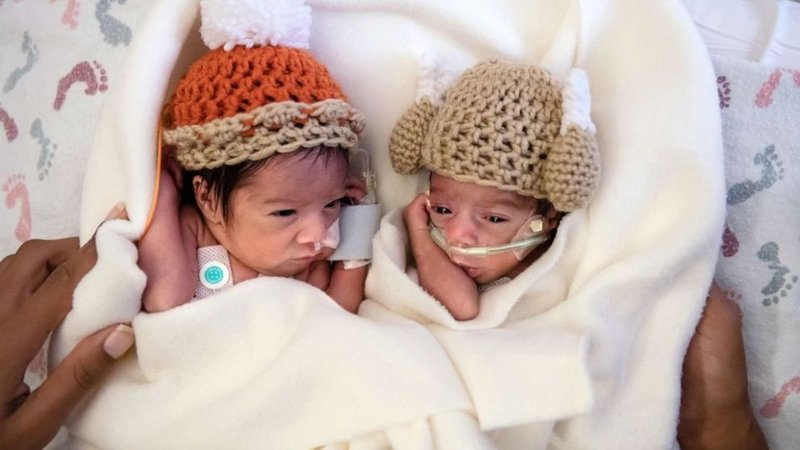 Twins Camden and Callie Riley are 1 of 12 sets of twins in care at Saint Luke's Hospital in Kansas City, Mo. (Helen Ransom/Faces You Love Photography)