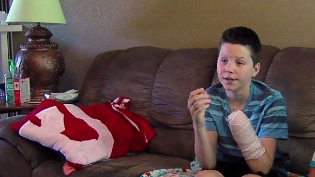 Oklahoma teen loses hand in freak firework accident - KTEN